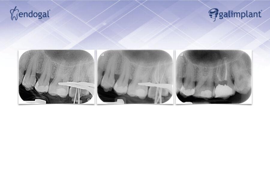 radiografia-gaite-art