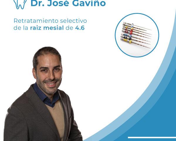 caso-clinico-retratamiento-raiz-mesial